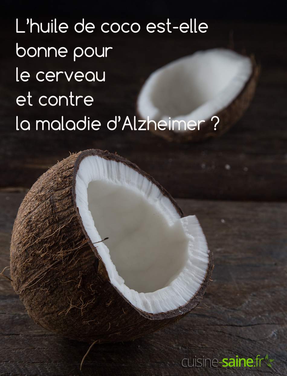 L'huile de coco est-elle bonne pour le cerveau et contre la maladie d'Alzheimer ?